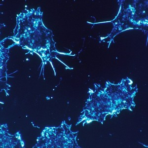 Cancer cells (stock image)